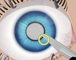 Play Eye Surgery